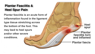 Plantar-fasciitis-and-heel-spur.png