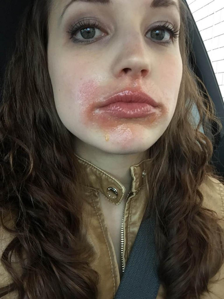 perioral dermatitis | skin rash | skin condition