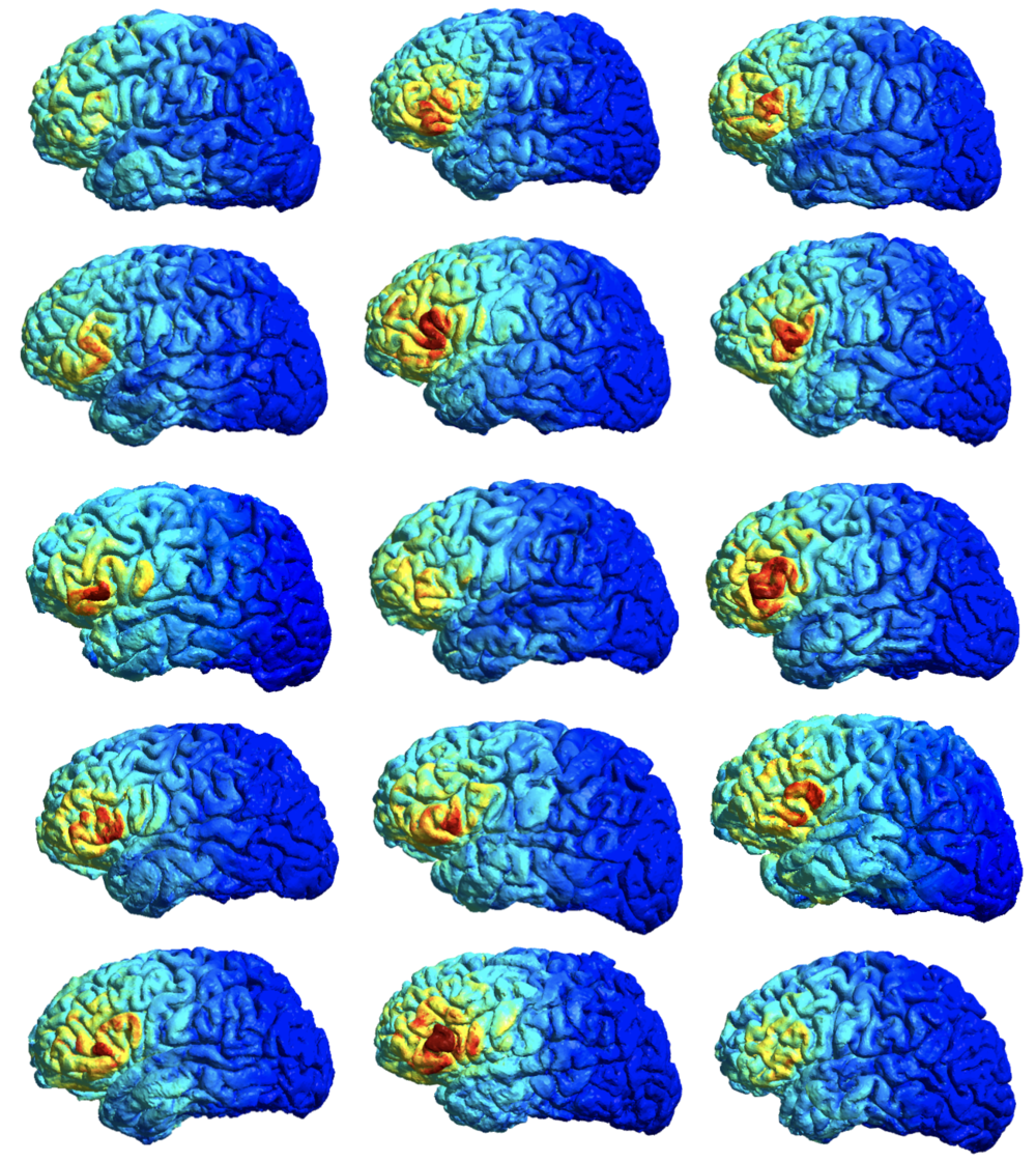These are the current flow models of 15 participants. For each participant, we collect anatomical scans of their brains, then use Freesurfer to create 3D meshes of their brains. Then we select brain targets (for my experiments, we target the left and right inferior frontal gyrus) and set up an electrode montage to maximally stimulate those targets. Lastly, we simulate current flow in participants' brains given their unique electrode montages with SimNIBS. As you can see above, there is a lot of variability when it comes to the amount of current delivered to the cortex. The advantage of modeling current flow is that we can account for these differences in current intensity at the cortex when analyzing the results of tDCS.