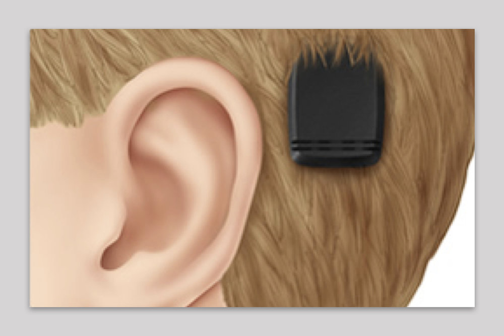 The only treatment for middle ear hearing loss is highly invasive - Patients who get a Bone Anchored Hearing Aid, currently the only treatment for middle ear hearing loss, must go through Craniofacial surgery.