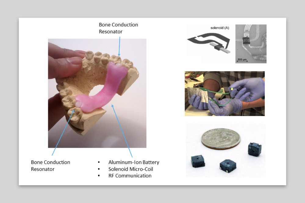 Embedded wireless charging keeps the device running all day - The device utilizes a flexible aluminum-ion battery that can be recharged wirelessly using a solenoid micro coil. A wireless charging pad would be placed under the pillow, safely recharging the hearing aid while the patient sleeps.