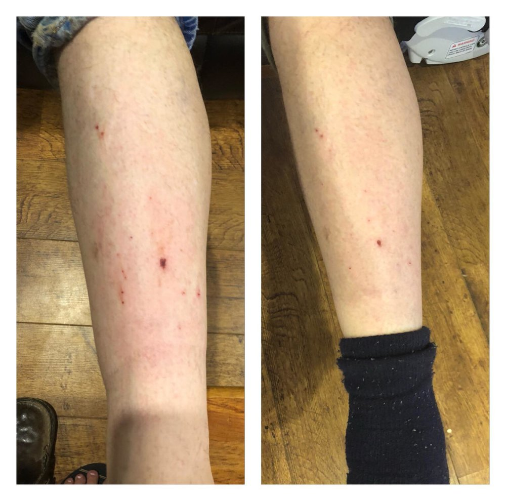 BEFORE & AFTER : Day 1 and Day 3 using eaze creme and eaze balm