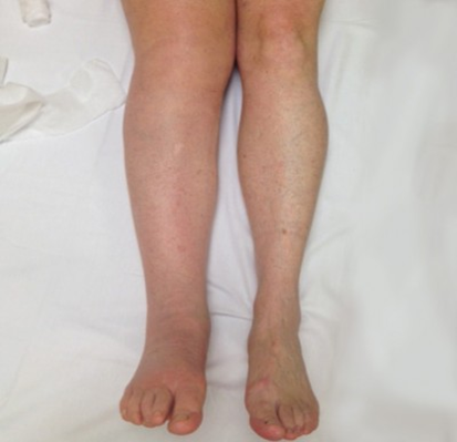What are the signs? - ·A feeling of heaviness or tightness in a limb or body part· Transient or long term swelling· Rings or watches may feel tighter· (in most cases lymphoedema is not painful)