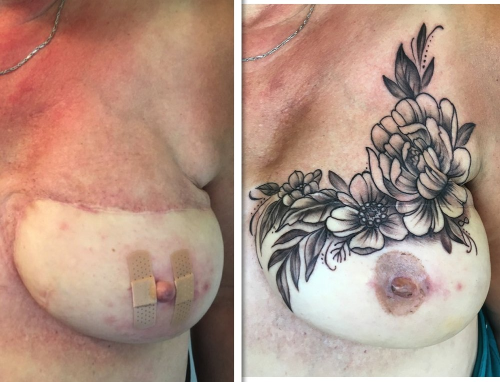 Radiation burn coverup with traditional tattooing.