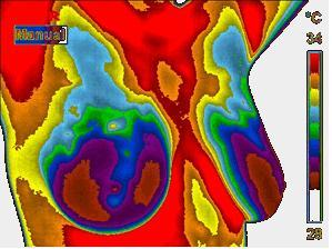 Digital Infrared Thermal Imaging   Integrative Wellness Center  earlybreastscreen.com  Ph: 916.784.9355