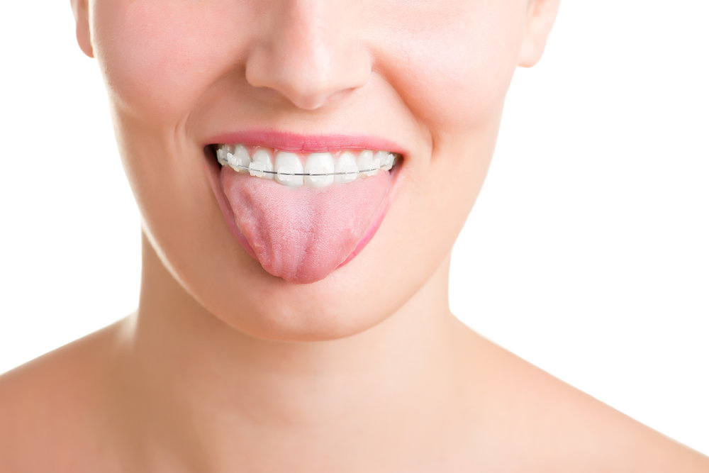 There are several types of braces: metal, clear, and Invisalign. All types of braces can straighten teeth well, but some are less noticeable than others. We offer clear/esthetic options as well as the latest in conventional orthodontics. -