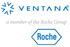 Ventana_Roche_Cancer_testing_market_research.jpg