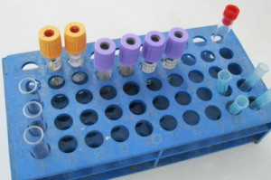 Test_Tube_clinical_Home_400w-300x199.jpg