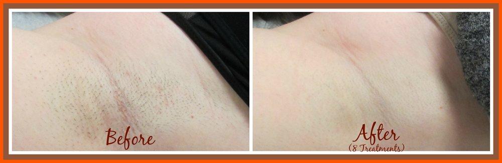KG UA B&A 8 treatments.jpg