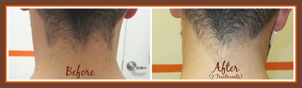 MD Nape B&A 7 treatments.jpg