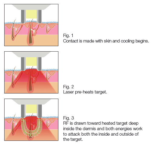 """What is the advantage of the Dual Hybrid energy sources in the Motif Vantage?   The Hybrid laser, combines the energy sources of light and electricity to reduce some of the risks with laser hair removal such as a burn or hypopigmenation. The MOTIF Vantage first releases the 810nm diode will be attracted to the pigment in the hair shaft, just like any other diode. The heat radiates out to the cells in the root sheath and heats them. The heating injures these cells and also lowers tissue impedance.  The Bipolar RF is released just after the 810nm diode and it gets concentrated to the warm spot, with lowered tissue impedance created by the diode. The RF is synergistically attracted to and injury the bulb directly (like""""pulsed"""" Electrolysis)."""