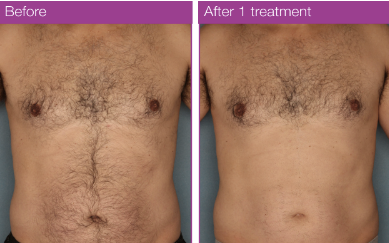 MOTIF VANTAGE - RESULTS TO RELY ON ; AFTER 1 TREATMENT.