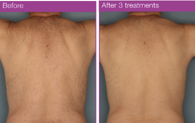 MOTIF VANTAGE - RESULTS TO RELY ON ; AFTER 3 TREATMENTS.