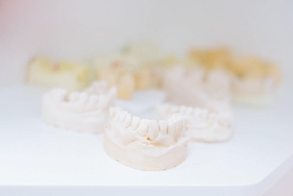 Zahnregulierung   Das ist ein Test   Test