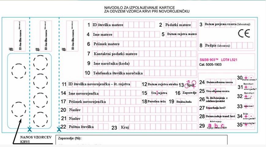 Vir: Klinika za nuklearno medicino, marec 2017.