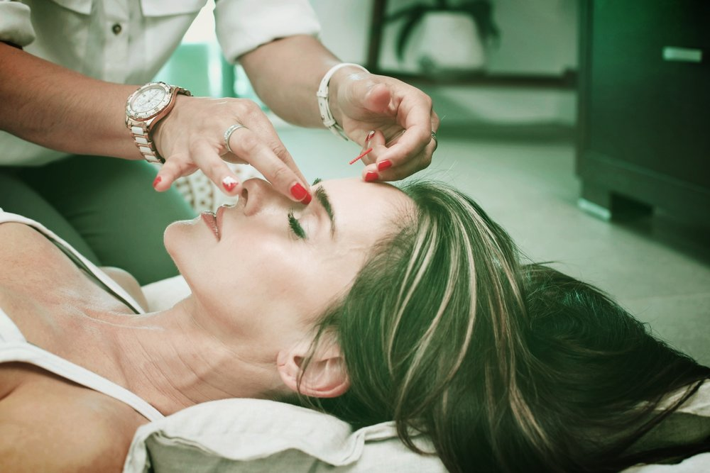 Chinese Acupuncture - Facial Cosmetic treatment