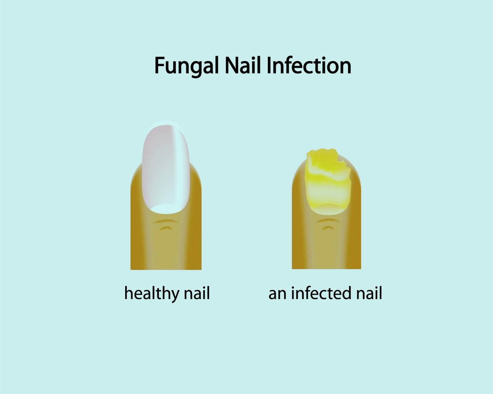 fungal toenail podiatrist watertown,ma