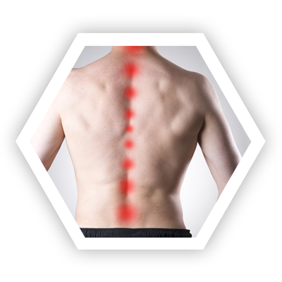 Thoracic or Mid-Back Pain