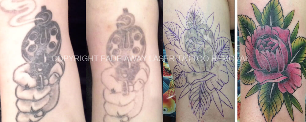 Here is an actual customer result in using Fade Away Laser to lighten an existing tattoo with laser to then facilitate a great coverup result!