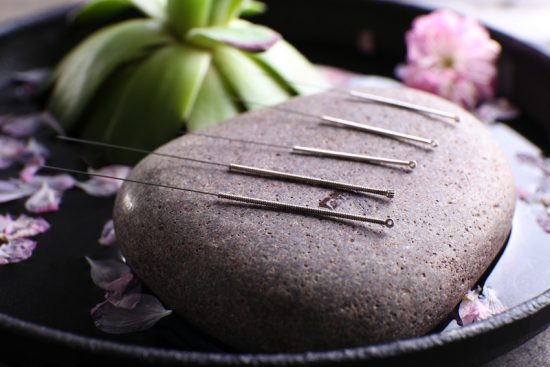 5-acupuncture-1-550x367.jpg