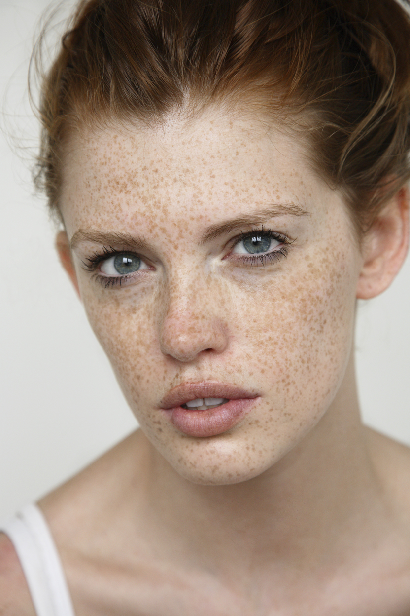 freckles_MG_0092.jpg