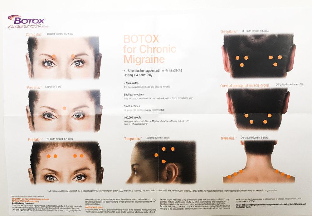 migraine Botox Injection Site