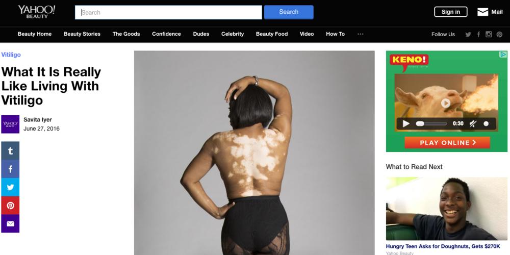 Yahoo Beauty & Style Vitiligo 6:2016.png