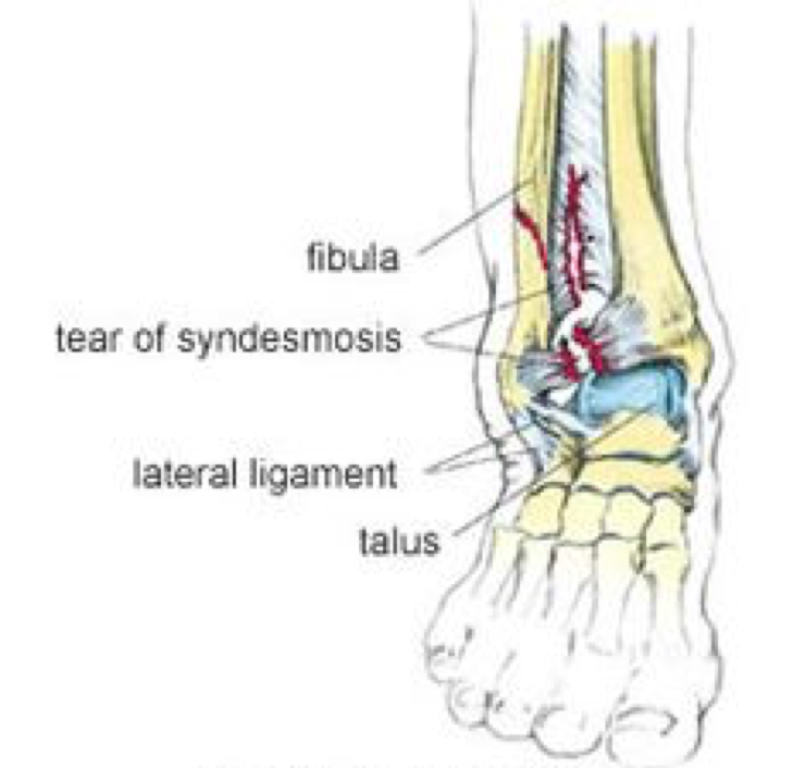 Recurrent Ankle Injuries And Balance Training Brookvale Physio