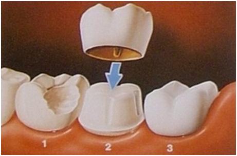 crowns-diagram.png