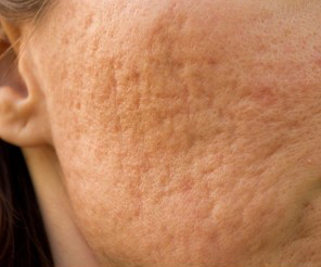 cicatrise-acne-cratere-microneedling.jpg