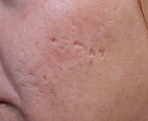 cicatrice-acne-pic-a-glace-microneedling.jpg