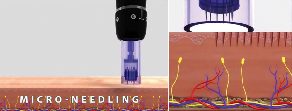 micro-needling-aiguilles.png