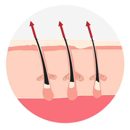 Icons_Epilation_Definitive_Derma-Nude_Reunion_3.png