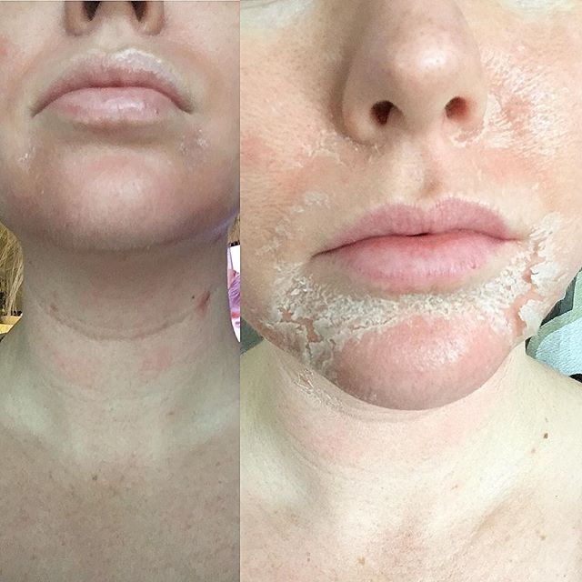 This time of year I get a lot of questions regarding peels. The photo on the left is 24-36 hours after application. Photo on the right is day 3. Generally, you start peeling around the mouth and chin (where you animate the most) finishing day 6-7 on the forehead and hairline. It's not the most glamorous, however you can go about your day! I recommend peels for clients with texture issues, acne, pigmentation, and anybody else that just wants to shed old skin for a fresh glow! Her final result to come.... happy holidays and happy shedding 🐍❤️