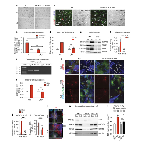 Astrocyte response to motor neuron injury promotes structural synaptic plasticity via STAT3-regulated TSP-1 expression   Nature Communications   5:4294   (2014)   Read It Here