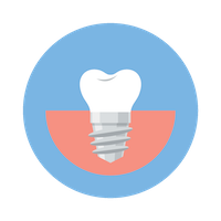 Tooth<br>Replacement