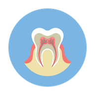 Dr. Morganti offers  root canals.