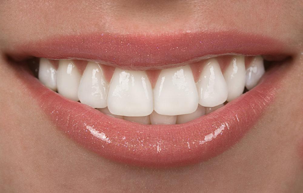 A nice, healthy smile! No cavities!