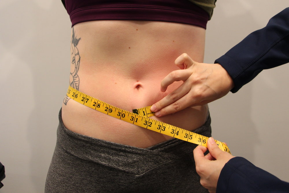 Hilary-After-Abdomen.JPG