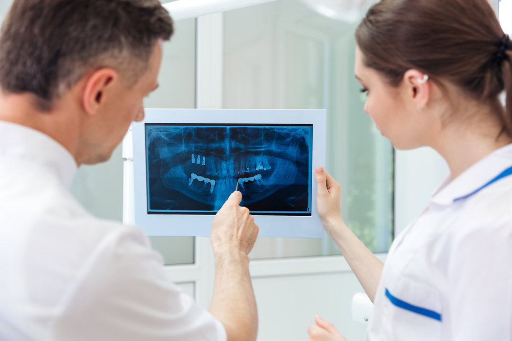Root Canal -