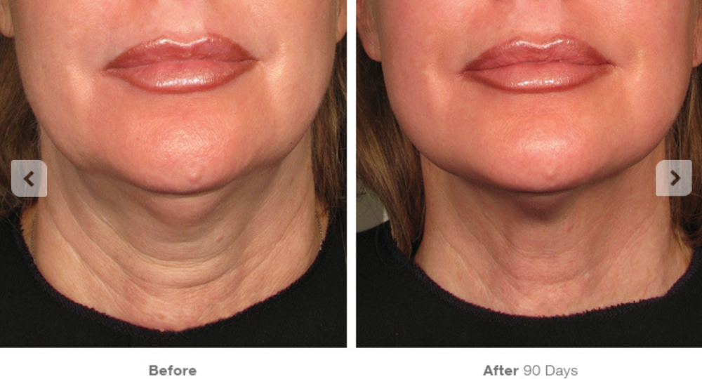 Non-surgical Neck Lift Before & After