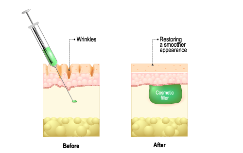 dermal-fillers.png