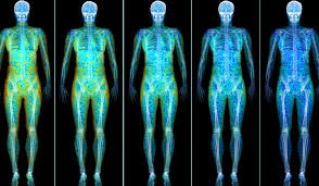 A DEXA Scan shows you the distribution of fat throughout your body. We all know that muscle weights more than fat, but did you know that there is 'healthy' and 'unhealthy' fat throughout the body?