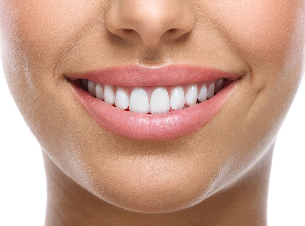 Teeth Whitening - Advanced Teeth Whitening treats coffee teet, soda teeth, extreme yellowing teeth with results in 30 mins to 1 hour. No pain, No sensitivity, No Damage to the enamal