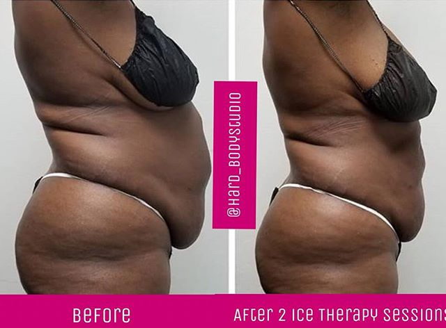 No change to her diet. No exercising. These  results are permanent and are led by our ice and essential oil that are infused into a block of ice, followed by wood Therapy. Nonetheless we activate your bodies natural thermogenesis and you dispose of the fat through your lymphatic system. No 2 people's results are the same, but results are guaranteed. 👉🏼No Credit Check Financing Available 👉🏼Lose lbs and inches 👉🏼Slim your face, your arms, back, thighs, stomach, breast, tighten loose skin effortlessly with lipo like results  Book at www.hardbodystudios.com/shop