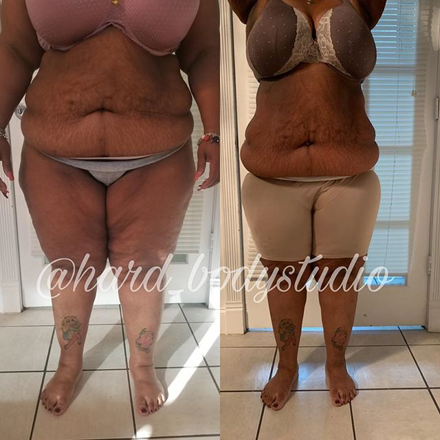 Imagine, you finally taking a step to do what it takes to change your life and bam you find something that works! Of course we are not Finish, we just like to tease you with our progress. Why haven't you scheduled your consult yet? There's nothing to lose but that extra weight you despise, click the link in the bio and let's get you started.
