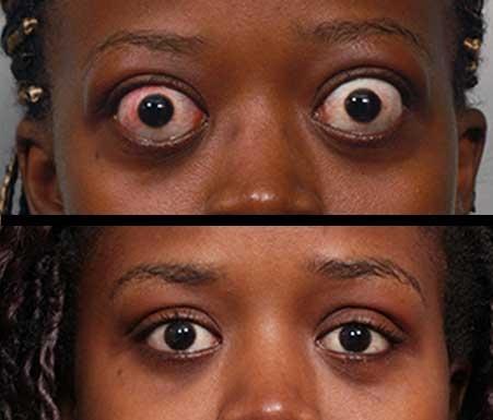 Thyroid-Eye.jpg