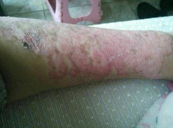 13 days after treatment 1.jpg