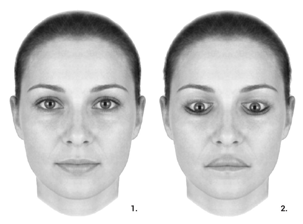 "Example of the ""Thatcher Effect"", from Little et al, ""The many faces of research on face perception"", Philosophical Transactions of the Royal Society, 2011."