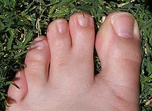 webbed-toes.jpg